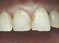 Реставрация зубов. До лечения