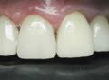 Реставрация зубов. После лечения